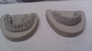 Final dental cast with base