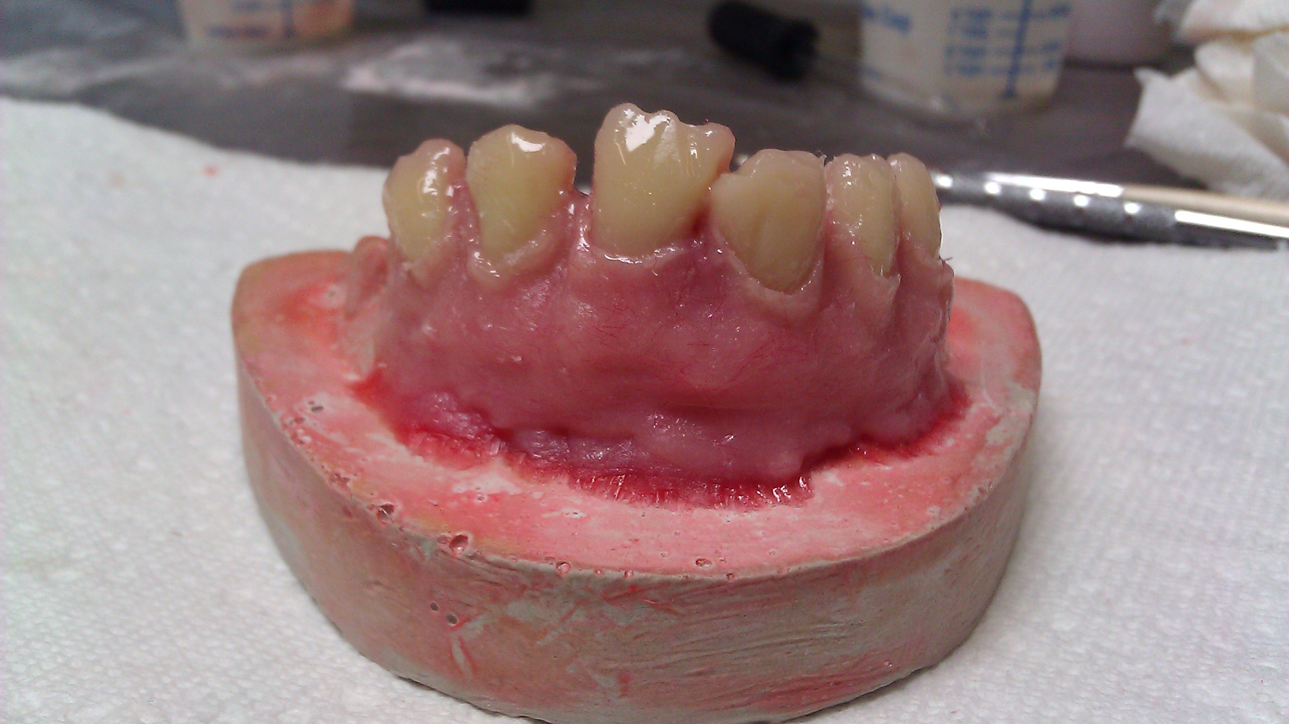 Denture sculpted to cast (front)