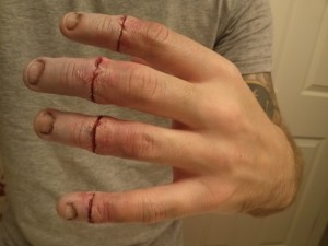 Finger severing (1/3) - pre-blood/stitches